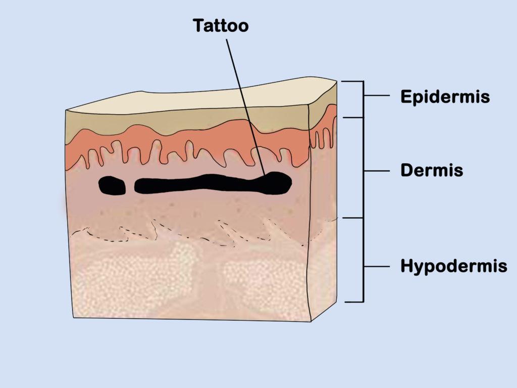 allergietest tatoeage