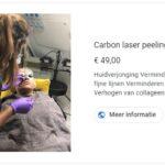 Carbon laser peeling behandeling - SLEEUWITS TΔTOEΔGE & HUID VERBETERING