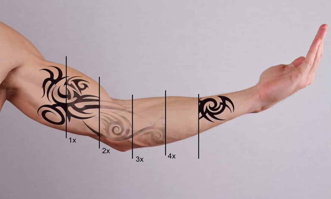 tatoeage verwijderen met laser en verwijderingsvloeistof