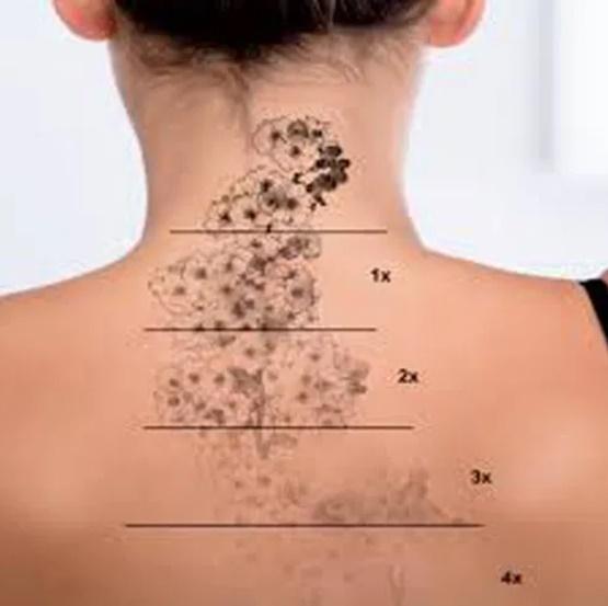 Onbeperkt tatoeage laseren voor 1 jaar -SLEEUWITS TΔTOEΔGE & HUID VERBETERING