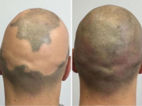Scalpelpigmentatie -SLEEUWITS TΔTOEΔGE & HUID VERBETERING